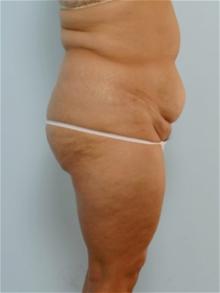 Body Contouring Before Photo by Paul Vitenas, Jr., MD; Houston, TX - Case 25993