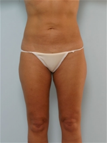 Liposuction After Photo by Paul Vitenas, Jr., MD; Houston, TX - Case 25994