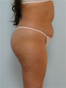 Liposuction Before Photo by Paul Vitenas, Jr., MD; Houston, TX - Case 25994