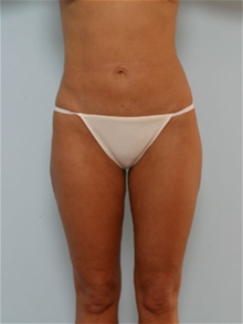 Liposuction After Photo by Paul Vitenas, Jr., MD; Houston, TX - Case 25995