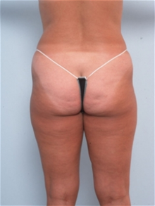 Liposuction Before Photo by Paul Vitenas, Jr., MD; Houston, TX - Case 25995