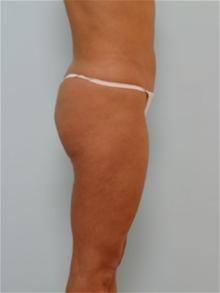 Liposuction After Photo by Paul Vitenas, Jr., MD; Houston, TX - Case 25995