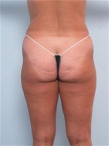 Liposuction Before Photo by Paul Vitenas, Jr., MD; Houston, TX - Case 25995