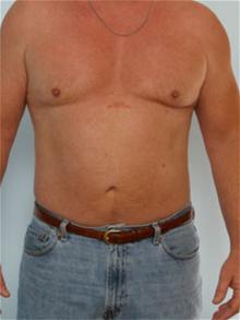 Liposuction After Photo by Paul Vitenas, Jr., MD; Houston, TX - Case 25996