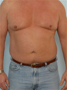 Liposuction Before Photo by Paul Vitenas, Jr., MD; Houston, TX - Case 25996