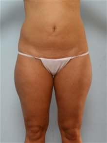 Liposuction Before Photo by Paul Vitenas, Jr., MD; Houston, TX - Case 25997