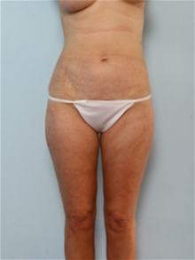 Liposuction After Photo by Paul Vitenas, Jr., MD; Houston, TX - Case 25999