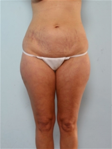 Liposuction Before Photo by Paul Vitenas, Jr., MD; Houston, TX - Case 25999