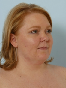 Liposuction Before Photo by Paul Vitenas, Jr., MD; Houston, TX - Case 26000