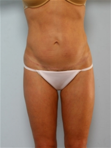 Tummy Tuck After Photo by Paul Vitenas, Jr., MD; Houston, TX - Case 26001