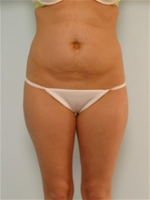 Tummy Tuck Before Photo by Paul Vitenas, Jr., MD; Houston, TX - Case 26001
