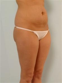Tummy Tuck Before Photo by Paul Vitenas, Jr., MD; Houston, TX - Case 26001