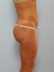 Tummy Tuck After Photo by Paul Vitenas, Jr., MD; Houston, TX - Case 26001