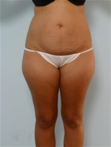 Tummy Tuck Before Photo by Paul Vitenas, Jr., MD; Houston, TX - Case 26002