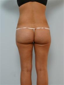 Tummy Tuck After Photo by Paul Vitenas, Jr., MD; Houston, TX - Case 26002