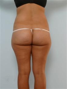 Tummy Tuck Before Photo by Paul Vitenas, Jr., MD; Houston, TX - Case 26002