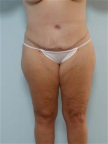 Tummy Tuck After Photo by Paul Vitenas, Jr., MD; Houston, TX - Case 26003
