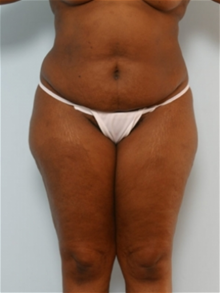 Tummy Tuck Before Photo by Paul Vitenas, Jr., MD; Houston, TX - Case 26004