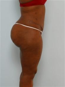 Tummy Tuck After Photo by Paul Vitenas, Jr., MD; Houston, TX - Case 26004