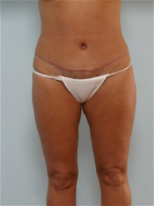 Tummy Tuck After Photo by Paul Vitenas, Jr., MD; Houston, TX - Case 26005