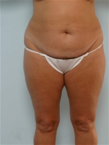 Tummy Tuck Before Photo by Paul Vitenas, Jr., MD; Houston, TX - Case 26005