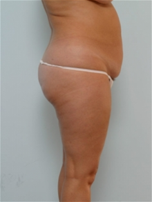Tummy Tuck Before Photo by Paul Vitenas, Jr., MD; Houston, TX - Case 26005