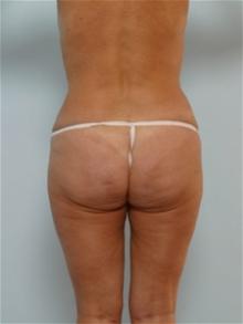Tummy Tuck After Photo by Paul Vitenas, Jr., MD; Houston, TX - Case 26005