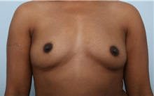 Breast Augmentation Before Photo by Paul Vitenas, Jr., MD; Houston, TX - Case 33077