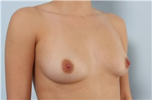 Breast Augmentation Before Photo by Paul Vitenas, Jr., MD; Houston, TX - Case 33079