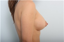 Breast Augmentation After Photo by Paul Vitenas, Jr., MD; Houston, TX - Case 33079