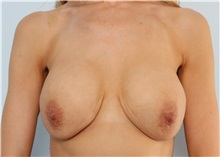 Breast Lift Before Photo by Paul Vitenas, Jr., MD; Houston, TX - Case 36932