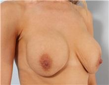 Breast Lift Before Photo by Paul Vitenas, Jr., MD; Houston, TX - Case 36932