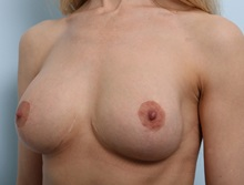 Breast Lift After Photo by Paul Vitenas, Jr., MD; Houston, TX - Case 36932