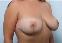 Breast Lift After Photo by Paul Vitenas, Jr., MD; Houston, TX - Case 36935
