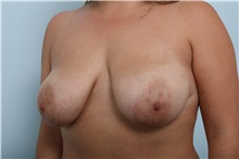 Breast Lift Before Photo by Paul Vitenas, Jr., MD; Houston, TX - Case 36935