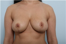 Breast Lift After Photo by Paul Vitenas, Jr., MD; Houston, TX - Case 36936