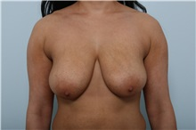 Breast Lift Before Photo by Paul Vitenas, Jr., MD; Houston, TX - Case 36936