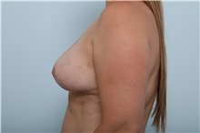 Breast Lift After Photo by Paul Vitenas, Jr., MD; Houston, TX - Case 36937