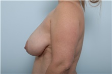 Breast Lift Before Photo by Paul Vitenas, Jr., MD; Houston, TX - Case 36937