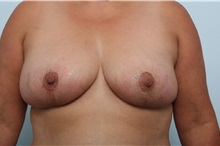 Breast Lift After Photo by Paul Vitenas, Jr., MD; Houston, TX - Case 36939