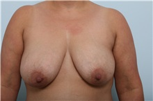 Breast Lift Before Photo by Paul Vitenas, Jr., MD; Houston, TX - Case 36939