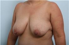 Breast Lift Before Photo by Paul Vitenas, Jr., MD; Houston, TX - Case 36939