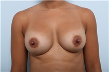 Breast Augmentation After Photo by Paul Vitenas, Jr., MD; Houston, TX - Case 36940