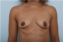 Breast Augmentation Before Photo by Paul Vitenas, Jr., MD; Houston, TX - Case 36940
