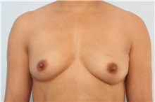 Breast Augmentation Before Photo by Paul Vitenas, Jr., MD; Houston, TX - Case 36941