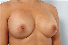Breast Augmentation After Photo by Paul Vitenas, Jr., MD; Houston, TX - Case 36941