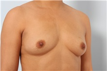 Breast Augmentation Before Photo by Paul Vitenas, Jr., MD; Houston, TX - Case 36941