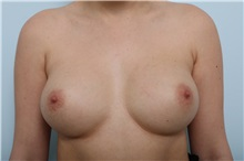 Breast Augmentation After Photo by Paul Vitenas, Jr., MD; Houston, TX - Case 36943