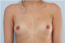 Breast Augmentation Before Photo by Paul Vitenas, Jr., MD; Houston, TX - Case 36943