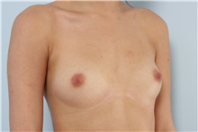 Breast Augmentation Before Photo by Paul Vitenas, Jr., MD; Houston, TX - Case 36943